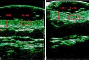 Zdjęcie przed i po, obrazujące stan skóry po trzech zabiegach urządzeniem Thuzzle na szyi 39 letniej pacjentki. Na drugim zdjęciu widzimy aż dwukrotne zwiększenie zagęszczenia włókien kolagenu i elastyny, z 43 do 86 jednostek. Skóra stała się grubsza, elastyczna, świeższa i bardziej jędrna. Dodatkowo doszło do redukcji zmarszczek.